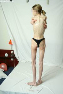 EXTREME-Skinny-Anorexic-Janine-1-q7btshohap.jpg